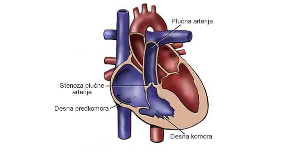 Stenoza plućne arterije
