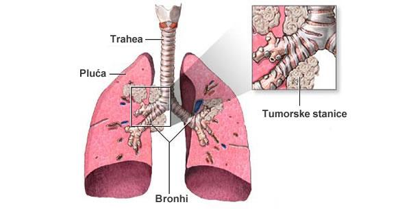 Tumor pluća