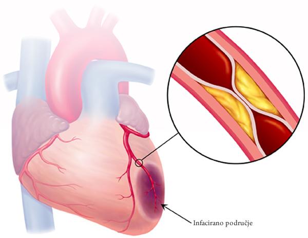 Vrsta holesterola odgovorna za infarkt