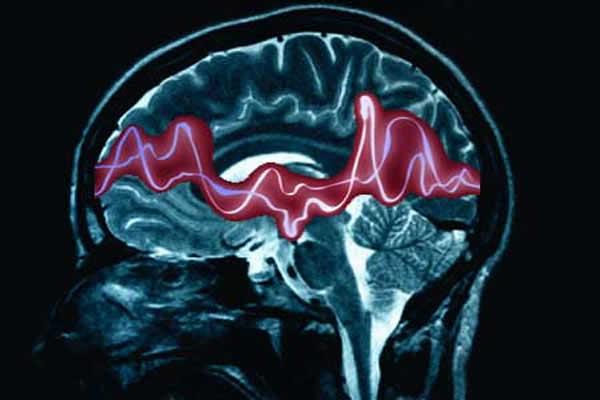 Perampanel za liječenje epilepsije