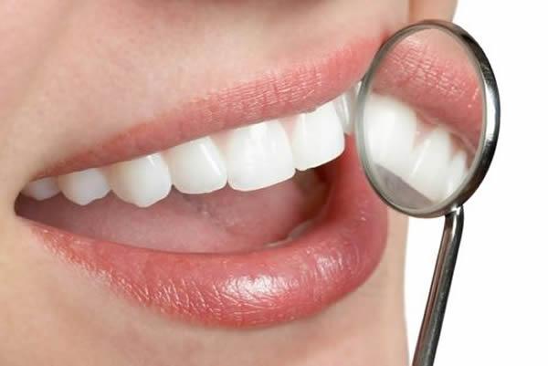 Plombiranje zuba ide u zaborav