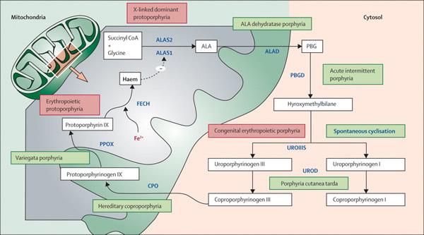 Hepatična porfirija uslijed nedostatka ALA-dehidrataze