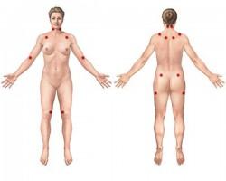 Položaj 9 parova osjetljivih tačaka koje je Američki fakultet za reumatologiju u 1990. godini utvrdio kao kriterij za fibromijalgiju.