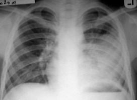 Primarne alveolarne pneumonije