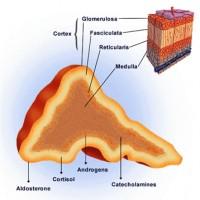 Akutni hipokorticizam